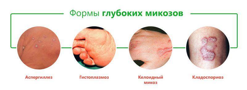 формы микозов
