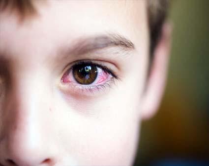 Конъюнктивит у ребенка на плесень