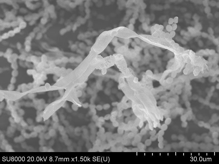 Как выглядит плесень под микроскопом