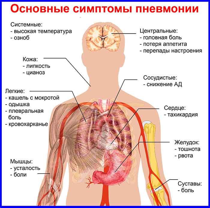 Пневмония из-за плесени