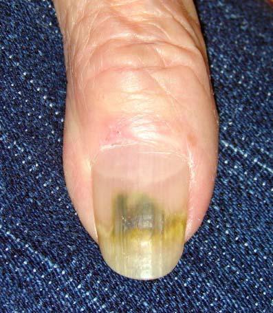 плесень на ногте