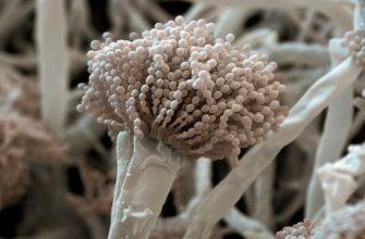 Под микроскопом плесень