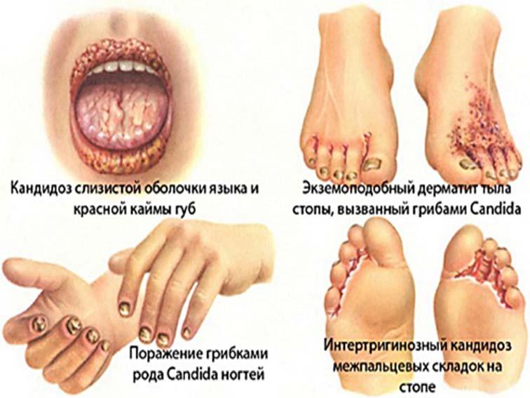 заболевания от плесени