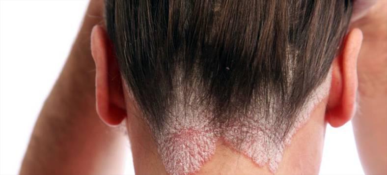 Средства для лечения грибковых заболеваний 29