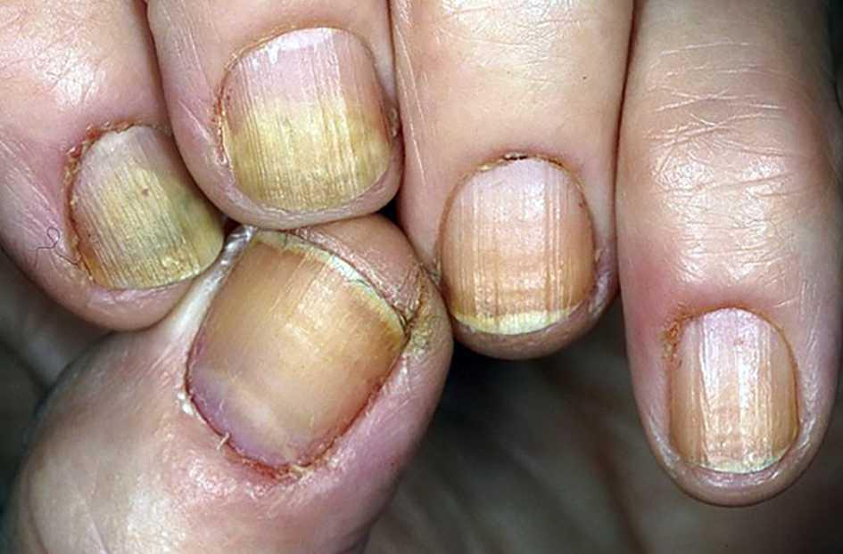 Заболевание Онихолизис грибок ногтей
