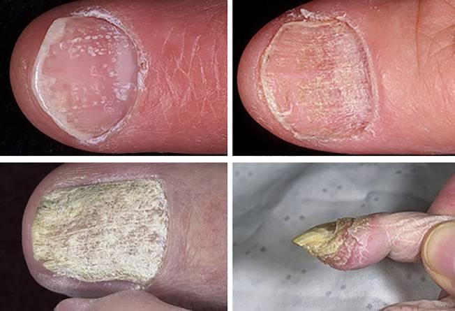 Средства для лечения грибковых заболеваний 27