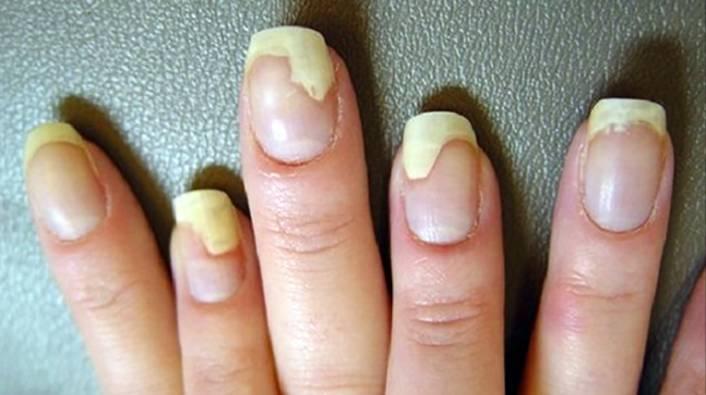 на руках грибок ногтей