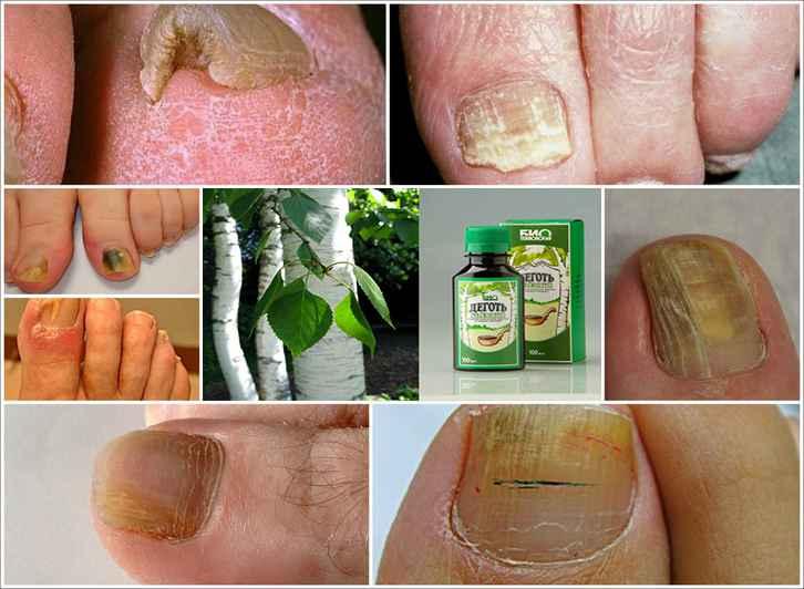 березовый деготь от грибка ногтей