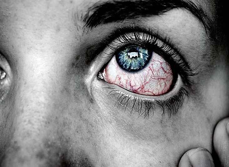 грибок на глазах