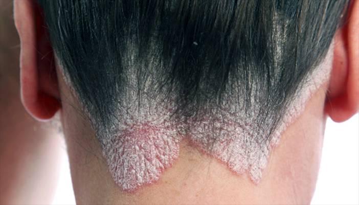 грибок на коже головы
