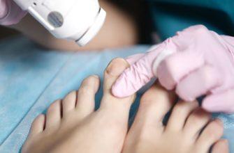 Лечение грибка на ногах лазером
