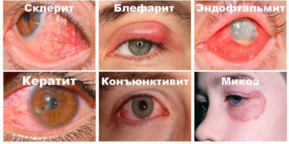 на глазах грибковая инфекция