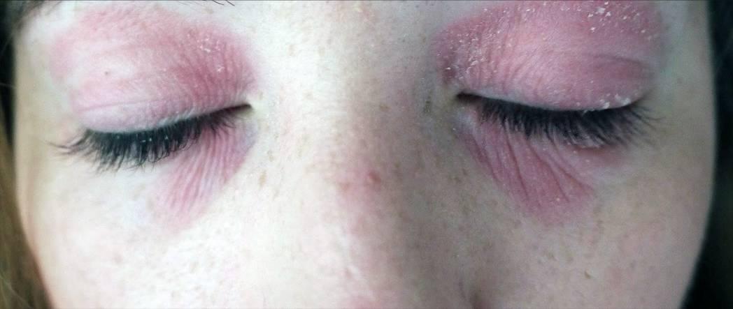 вокруг глаз грибок