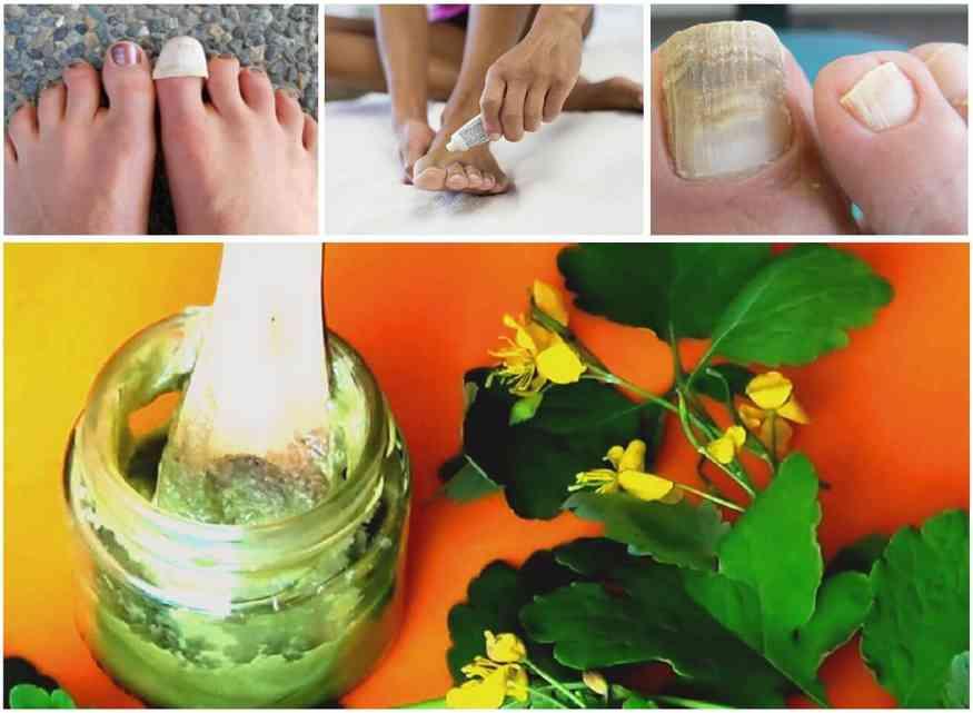 чистотел от грибка ногтей