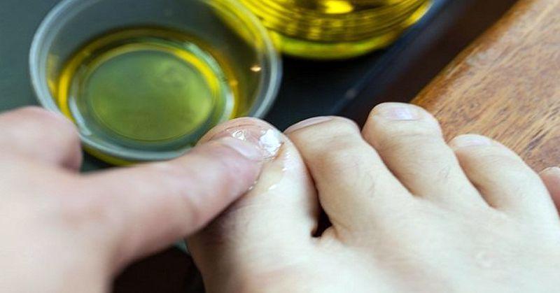 Эфирные масла от грибка на ногах (подборка, рекомендации по применению)