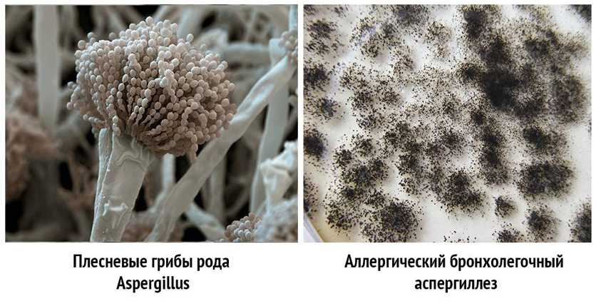 Аспергиллез аллергический и грибы рода Aspergillus