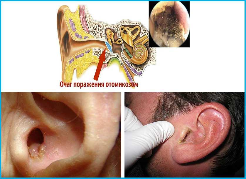 Грибок в ушах октомикоз